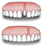 Ricostruzione dente singolo
