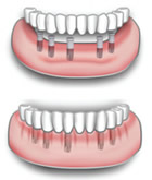 Protesi dentale superiore o inferiore